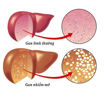 Giải pháp cho bệnh gan nhiễm mỡ